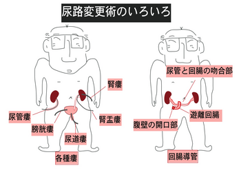 尿路変更術.png