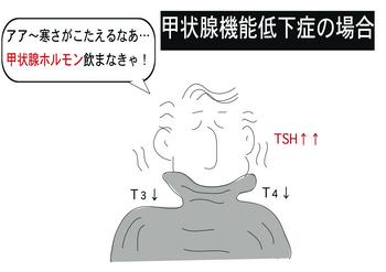 甲状腺機能低下症.png