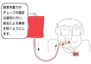 経管栄養.png