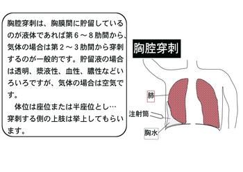 胸腔穿刺.png